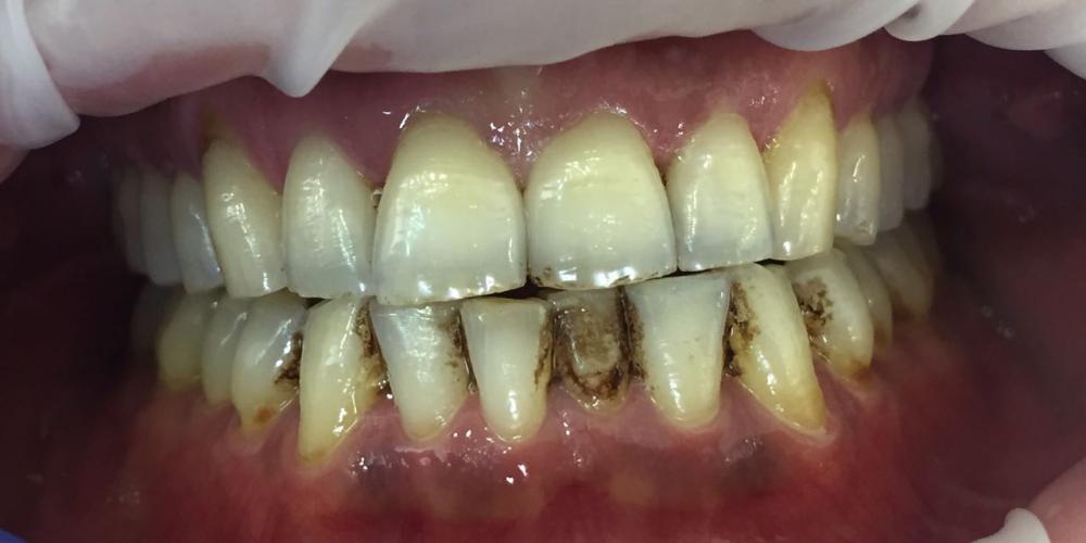 Жалобы на кровоточивость дёсен и зубные отложения