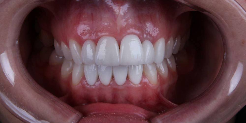 Исправление формы и цвета передних зубов при помощи виниров