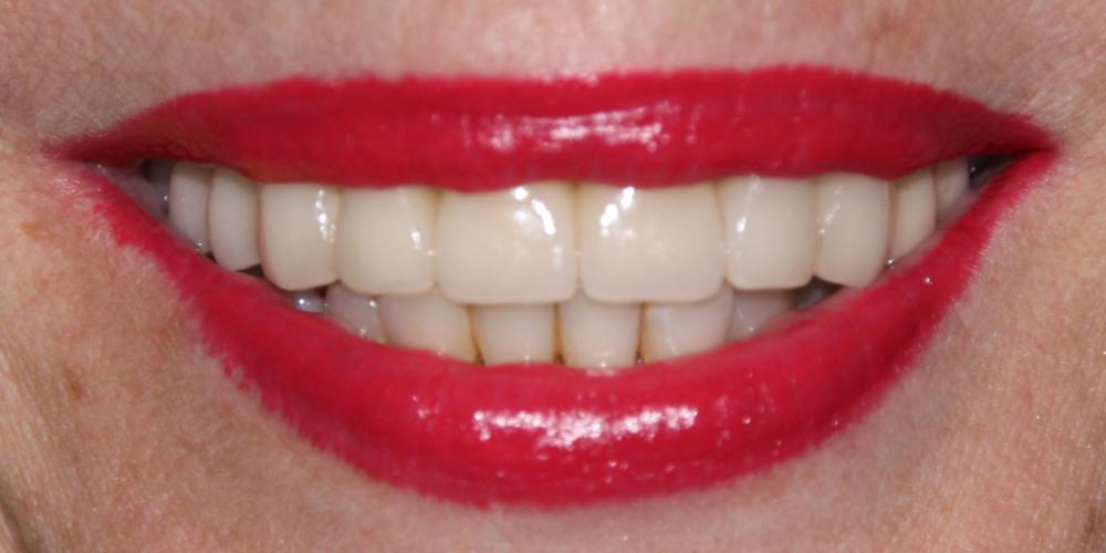 Фото после лечения Жалобы на отсутствие зубов верхней челюсти