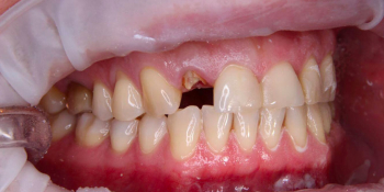 Спасение зуба и восстановление коронкой фото до лечения