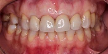 Результат имплантации зуба под ключ после перелома корня зуба фото после лечения
