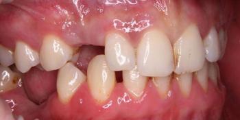 Восстановление утраченного зуба при помощи дентального импланта фото до лечения