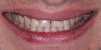 Реставрация стёртых зубов керамическими винирами фото до лечения