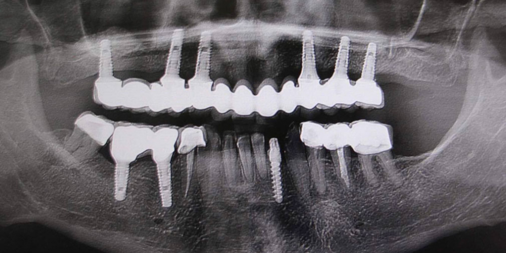 Операция комплексного восстановление зубов