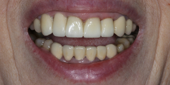 Протезирование 4х зубов и протезирование имплантата в области 12 зуба фото после лечения
