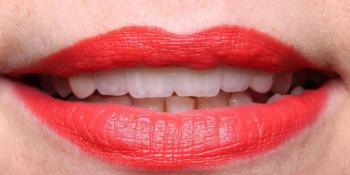 Восстановление передних зубов одномоментной имплантацией фото после лечения