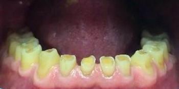 Протезирование нижней челюсти безметалловыми коронками фото до лечения