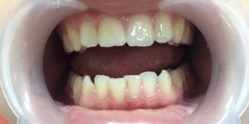 Исправление скрученности зубов на нижней челюсти фото до лечения