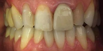 Протезирование цельнокерамическими коронками E-MAX фото до лечения