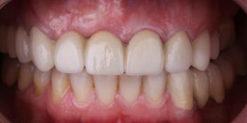 Жалобы на эстетику передних зубов, новый металлокерамический мост фото после лечения