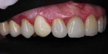 Пациент обратился с переломом коронки зуба фото после лечения