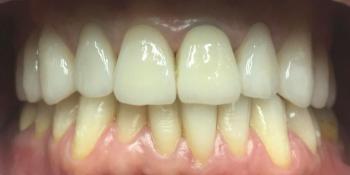 Протезирование цельнокерамическими коронками E-MAX фото после лечения