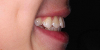 Лечение ортодонтической пластинкой фото после лечения