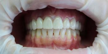 Протезирование цельнокерамическими коронками фронтальной группы зубов фото после лечения