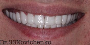 Реставрация стёртых зубов керамическими винирами фото после лечения
