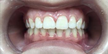 Исправление скрученности зубов на нижней челюсти фото после лечения