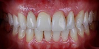 Пациентка обратилась с отломленным зубом ниже уровня десны фото после лечения