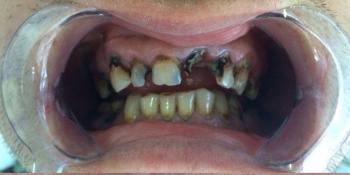 Восстановления жевательной и эстетической функции зубов фото до лечения