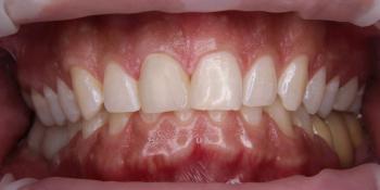 Керамическая коронка на передний зуб фото после лечения
