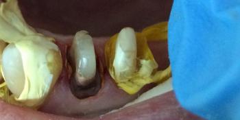 Восстановление разрушенных зубов 1.4, 1.5 фото до лечения