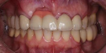 Жалобы на эстетику передних зубов, новый металлокерамический мост фото до лечения