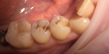 Восстановление зуба по 1 классу Блэка фотопломбой фото до лечения