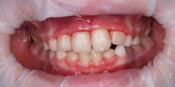 Реплантация передних зубов у ребенка фото после лечения