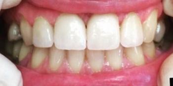 Устранение щели между передних зубов с помощью виниров фото после лечения