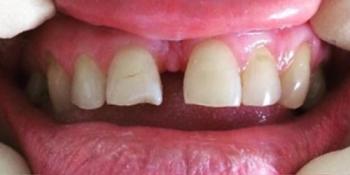 Устранение щели между передних зубов с помощью виниров фото до лечения