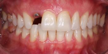 Пациентка обратилась с отломленным зубом ниже уровня десны фото до лечения