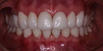 Тотальная реконструкция окклюзии с использованием керамических виниров фото после лечения