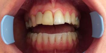 Протезирование цельнокерамическими коронками фронтальной группы зубов фото до лечения