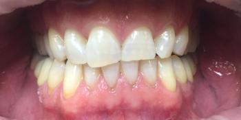 Офисное отбеливание зубов Системой Opalessens  фото после лечения