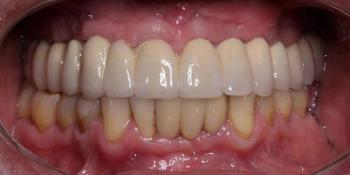 Тотальная реконструкция верхней челюсти с опорой на импланты фото после лечения