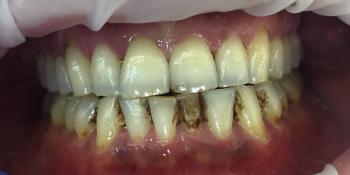 Жалобы на кровоточивость дёсен и зубные отложения фото до лечения