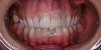 Исправление формы и цвета передних зубов при помощи виниров фото до лечения