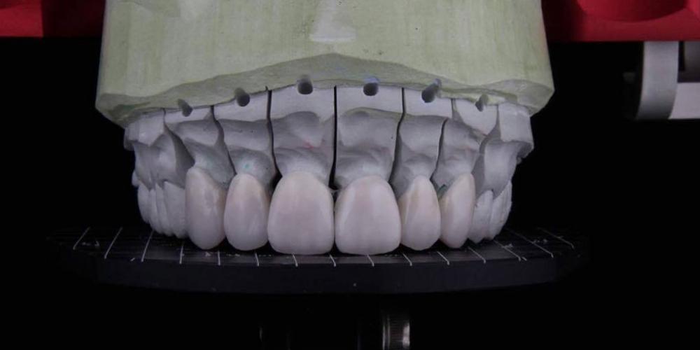 Тотальная реконструкция окклюзии с использованием керамических виниров