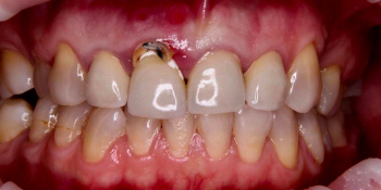 Результат имплантации зуба под ключ после перелома корня зуба фото до лечения