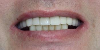 Восстановления жевательной и эстетической функции зубов фото после лечения