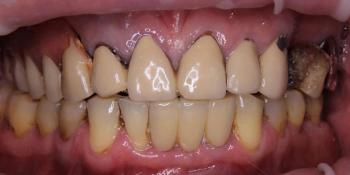 Тотальная реконструкция верхней челюсти с опорой на импланты фото до лечения
