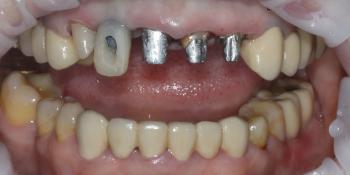 Протезирование 4х зубов и протезирование имплантата в области 12 зуба фото до лечения