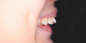 Лечение ортодонтической пластинкой фото до лечения