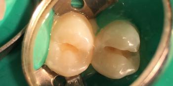 Кариес 14, 15 зубов фото до лечения