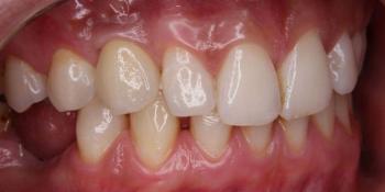 Восстановление утраченного зуба при помощи дентального импланта фото после лечения