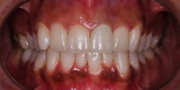 4 керамических винира + отбеливание зубов фото после лечения