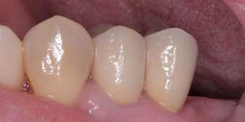 Восстановление разрушенных зубов 1.4, 1.5 фото после лечения