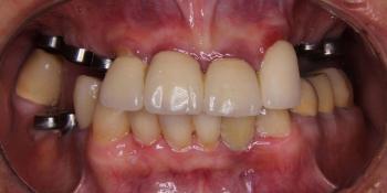 Операция комплексного восстановление зубов фото до лечения