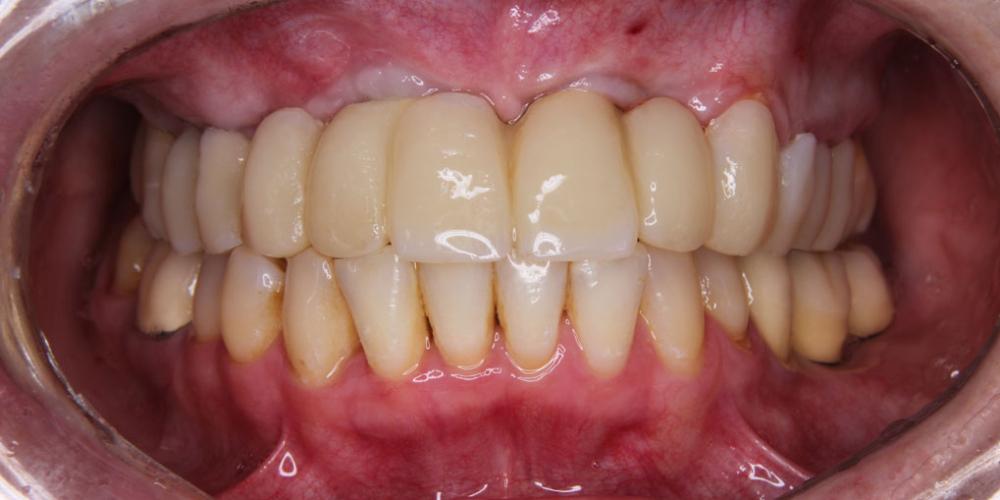 Временный протез Жалобы на отсутствие зубов верхней челюсти
