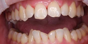 Реставрация 4х центральных резцов керамическими винирами фото до лечения