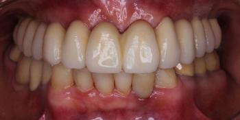 Операция комплексного восстановление зубов фото после лечения